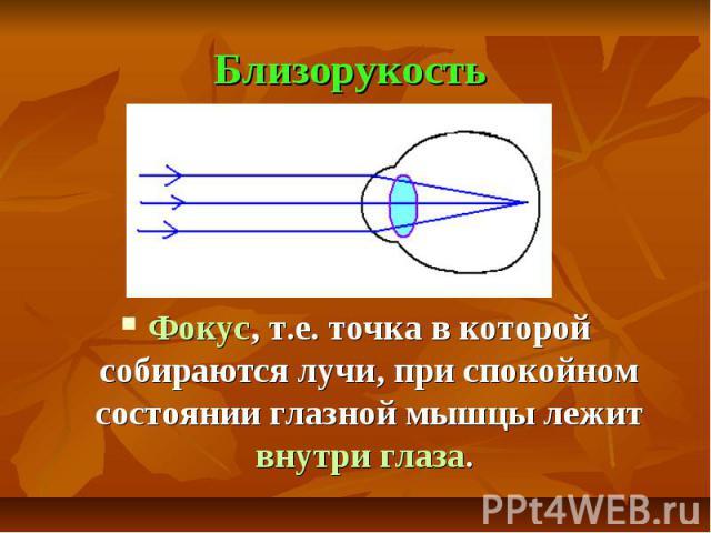 Близорукость Фокус, т.е. точка в которой собираются лучи, при спокойном состоянии глазной мышцы лежит внутри глаза.