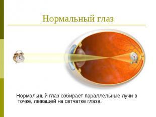 Нормальный глаз Нормальный глаз собирает параллельные лучи в точке, лежащей на с