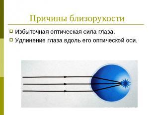 Причины близорукости Избыточная оптическая сила глаза. Удлинение глаза вдоль его