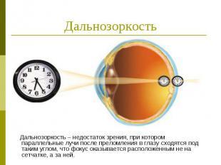 Дальнозоркость Дальнозоркость – недостаток зрения, при котором параллельные лучи