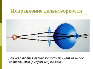 Исправление дальнозоркости Для исправления дальнозоркости применяют очки с собир