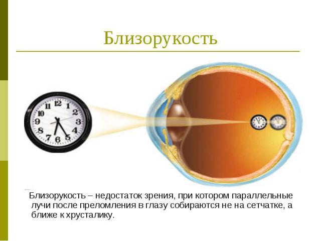 Близорукость Близорукость – недостаток зрения, при котором параллельные лучи после преломления в глазу собираются не на сетчатке, а ближе к хрусталику.