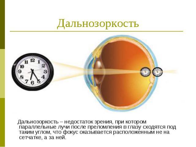 Дальнозоркость Дальнозоркость – недостаток зрения, при котором параллельные лучи после преломления в глазу сходятся под таким углом, что фокус оказывается расположенным не на сетчатке, а за ней.