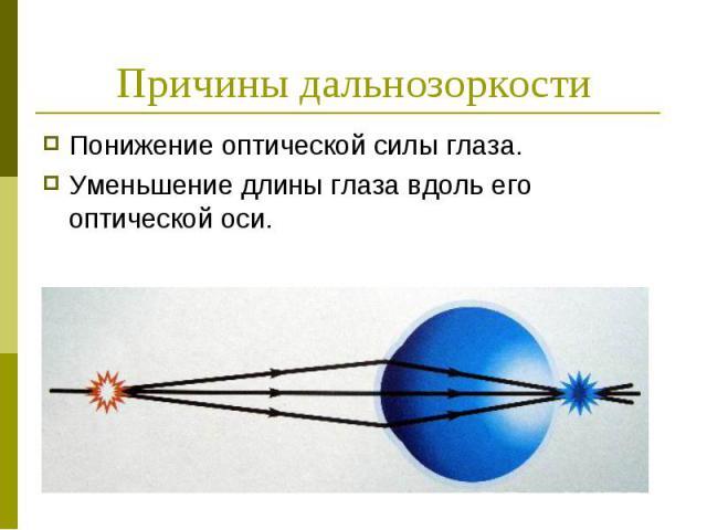 Причины дальнозоркости Понижение оптической силы глаза. Уменьшение длины глаза вдоль его оптической оси.