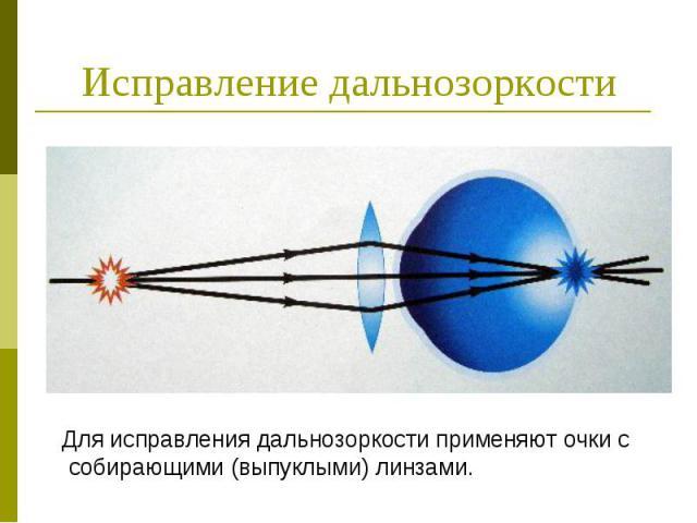 Исправление дальнозоркости Для исправления дальнозоркости применяют очки с собирающими (выпуклыми) линзами.