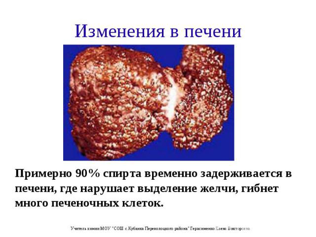 Примерно 90% спирта временно задерживается в печени, где нарушает выделение желчи, гибнет много печеночных клеток. Примерно 90% спирта временно задерживается в печени, где нарушает выделение желчи, гибнет много печеночных клеток.