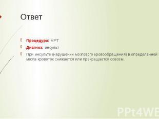 Ответ Процедура: МРТ Диагноз: инсульт При инсульте (нарушении мозгового кровообр
