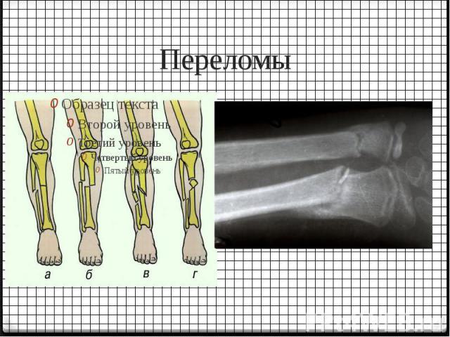 Переломы