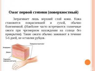 Ожог первой степени (поверхностный) Затрагивает лишь верхний слой кожи. Кожа ста