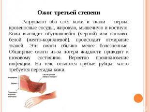 Ожог третьей степени Разрушают оба слоя кожи и ткани – нервы, кровеносные сосуды