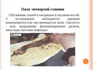 Ожог четвертой степени Обугливание тканей и находящихся под ними костей. У постр