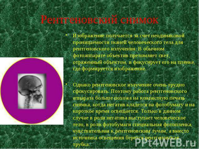 Изображение получается за счет неодинаковой проницаемости тканей человеческого тела для рентгеновского излучения. В обычном фотоаппарате объектив преломляет свет, отраженный объектом, и фокусирует его на пленке, где формируется изображение. Изображе…