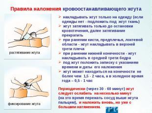 Правила наложения кровоостанавливающего жгута