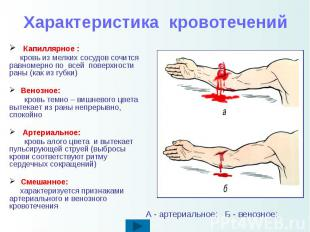 Характеристика кровотечений Капиллярное : кровь из мелких сосудов сочится равном