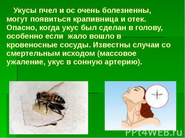 Укусы пчел и ос очень болезненны, могут появиться крапивница и отек. Опасно, когда укус был сделан в голову, особенно если жало вошло в кровеносные сосуды. Известны случаи со смертельным исходом (массовое ужаление, укус в сонную артерию). Укус…