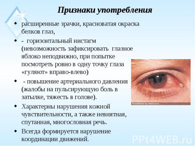 расширенные зрачки, красноватая окраска белков глаз, расширенные зрачки, красноватая окраска белков глаз, - горизонтальный нистагм (невозможность зафиксировать глазное яблоко неподвижно, при попытке посмотреть ровно в одну точку глаза «гуляют» вправ…