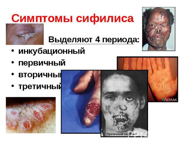 Симптомы сифилиса Выделяют 4 периода: инкубационный первичный вторичный третичный
