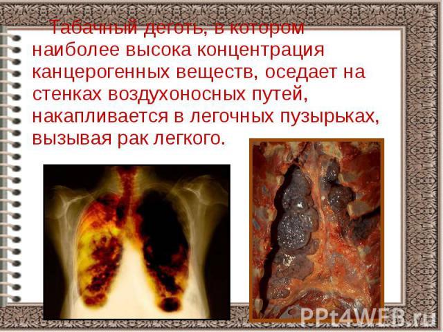 Табачный деготь, в котором наиболее высока концентрация канцерогенных веществ, оседает на стенках воздухоносных путей, накапливается в легочных пузырьках, вызывая рак легкого. Табачный деготь, в котором наиболее высока концентрация канцерогенных вещ…