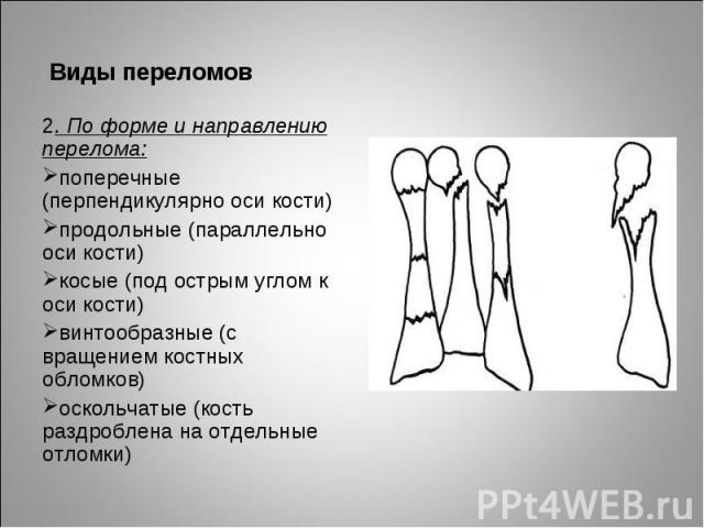 2. По форме и направлению перелома: 2. По форме и направлению перелома: поперечные (перпендикулярно оси кости) продольные (параллельно оси кости) косые (под острым углом к оси кости) винтообразные (с вращением костных обломков) оскольчатые (кость ра…