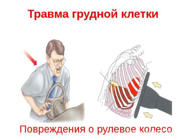 Повреждения о рулевое колесо