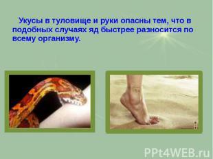 Укусы в туловище и руки опасны тем, что в подобных случаях яд быстрее разносится