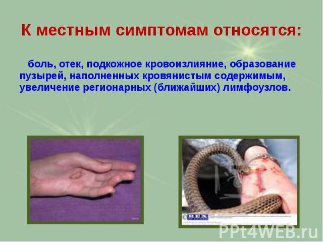 К местным симптомам относятся: боль, отек, подкожное кровоизлияние, образование пузырей, наполненных кровянистым содержимым, увеличение регионарных (ближайших) лимфоузлов.