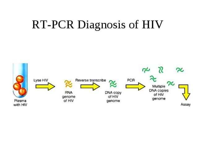 RT-PCR Diagnosis of HIV