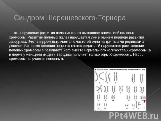 Синдром Шерешевского-Тернера - это нарушение развития половых желез вызванное аномалией половых хромосом. Развитие половых желез нарушается уже в раннем периоде развития зародыша. Этот синдром встречается с частотой одна на три тысячи родившихся дев…
