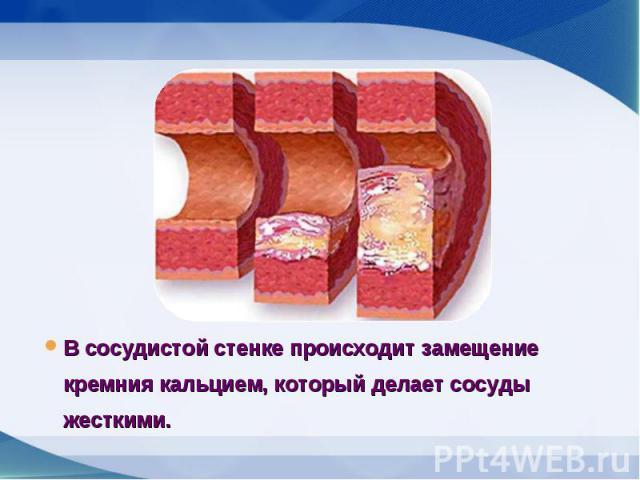В сосудистой стенке происходит замещение кремния кальцием, который делает сосуды жесткими. В сосудистой стенке происходит замещение кремния кальцием, который делает сосуды жесткими.