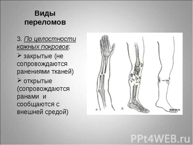3. По целостности кожных покровов: 3. По целостности кожных покровов: закрытые (не сопровождаются ранениями тканей) открытые (сопровождаются ранами и сообщаются с внешней средой)
