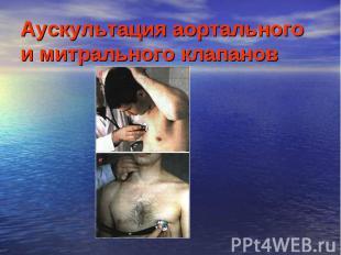 Аускультация аортального и митрального клапанов