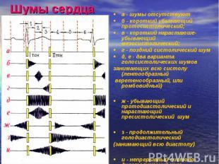 Шумы сердца а - шумы отсутствуют б - короткий убывающий протосистолический; в -