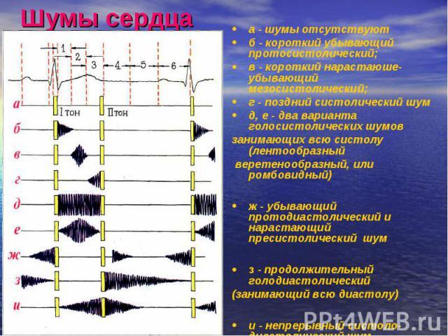 Шумы сердца а - шумы отсутствуют б - короткий убывающий протосистолический; в - короткий нарастаюше-убывающий мезосистолический; г - поздний систолический шум д, е - два варианта голосистолических шумов занимающих всю систолу (лентообразный веретено…