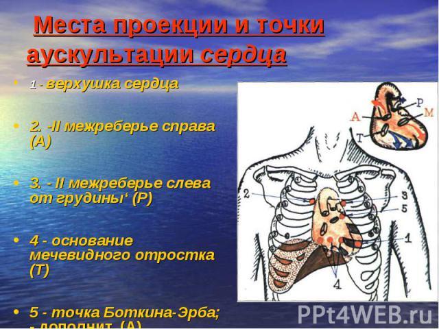 Места проекции и точки аускультации сердца 1 - верхушка сердца 2. -II межреберье справа (А) 3. - II межреберье слева от грудины' (Р) 4 - основание мечевидного отростка (Т) 5 - точка Боткина-Эрба;  дополнит. (А)