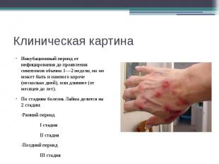Клиническая картина Инкубационный период от инфицирования до проявления симптомо