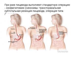 При раке пищевода выполняют стандартную операцию - эзофагэктомию (синонимы: тран