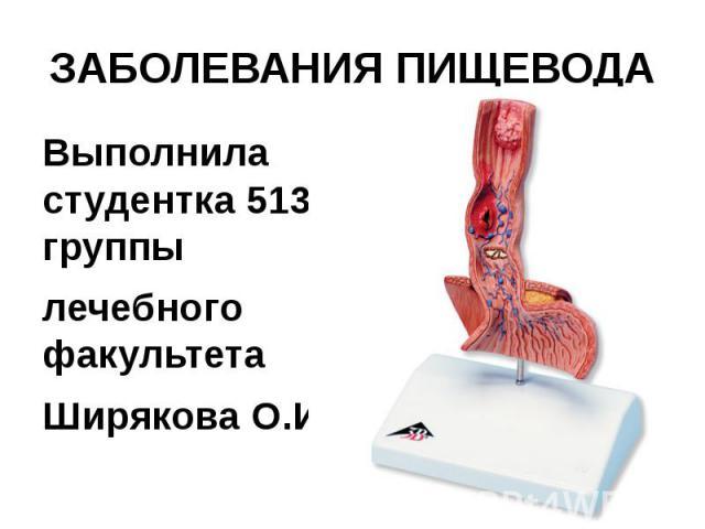 ЗАБОЛЕВАНИЯ ПИЩЕВОДА Выполнила студентка 513 группы лечебного факультета Ширякова О.И.