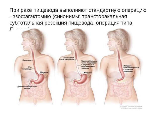 При раке пищевода выполняют стандартную операцию - эзофагэктомию (синонимы: трансторакальная субтотальная резекция пищевода, операция типа Льюиса)