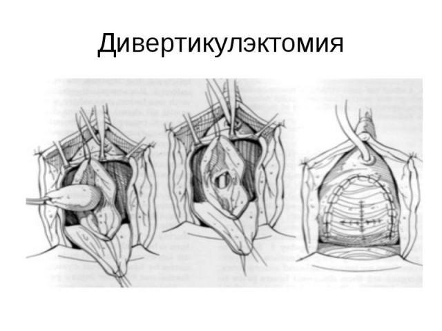 Дивертикулэктомия