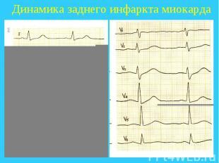 Динамика заднего инфаркта миокарда