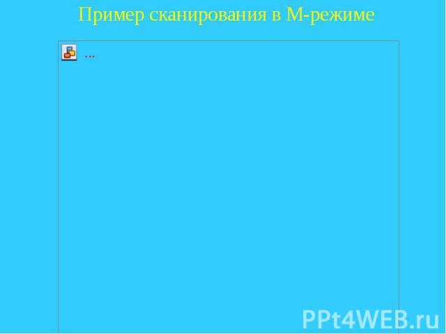 Пример сканирования в М-режиме