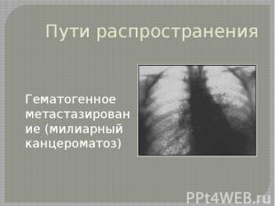 Пути распространения Гематогенное метастазирование (милиарный канцероматоз)