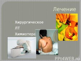 Лечение Хирургическое ЛТ Химиотерапия