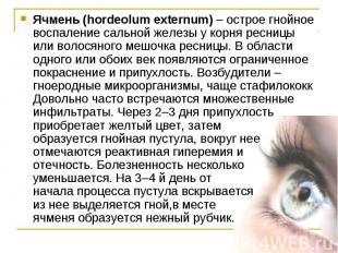 Ячмень (hordeolum externum) – острое гнойное воспаление сальной железы у корня р