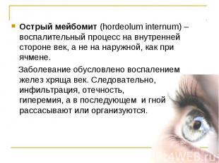Острый мейбомит (hordeolum internum) – воспалительный процесс на внутренней стор