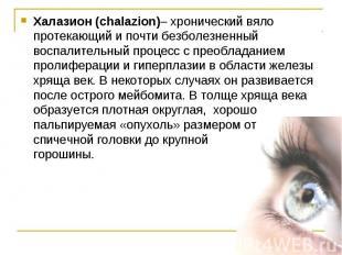 Халазион (chalazion)– хронический вяло протекающий и почти безболезненный воспал