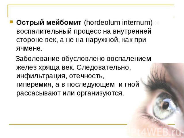 Острый мейбомит (hordeolum internum) – воспалительный процесс на внутренней стороне век, а не на наружной, как при ячмене. Острый мейбомит (hordeolum internum) – воспалительный процесс на внутренней стороне век, а не на наружной, как при ячмене. Заб…