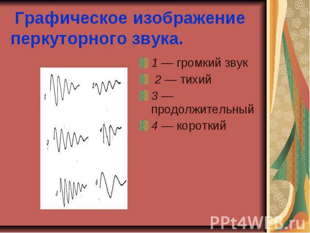 Графическое изображение перкуторного звука. 1 — громкий звук 2 — тихий 3 — продолжительный 4 — короткий