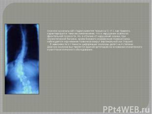 Сколиоз на начальной стадии развития процесса (1 ст.), как правило, характеризуе
