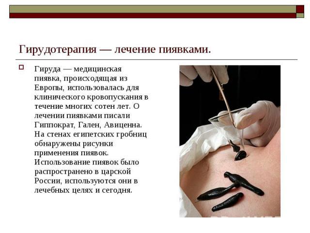 Гирудотерапия — лечение пиявками. Гируда — медицинская пиявка, происходящая из Европы, использовалась для клинического кровопускания в течение многих сотен лет. О лечении пиявками писали Гиппократ, Гален, Авиценна. На стенах египетских гробниц обнар…